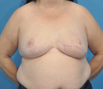 Reconstruction Revision Before & After Patient #275