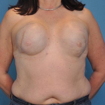 Autologous/DIEP Flap Reconstruction Before & After Patient #246