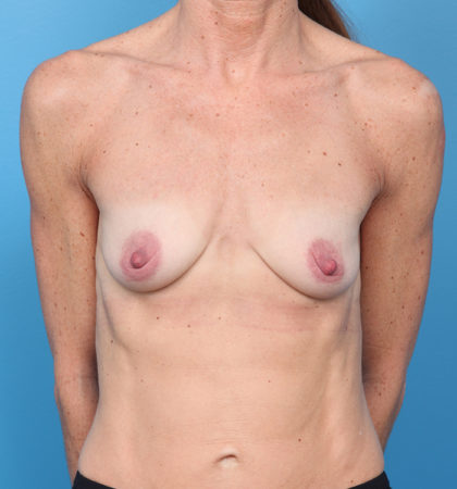 Breast Augmentation Before & After Patient #196
