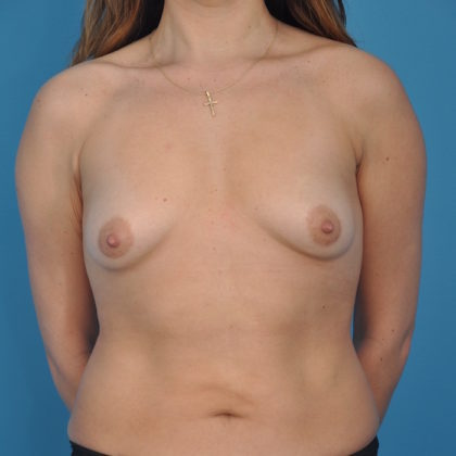 Breast Augmentation Before & After Patient #203