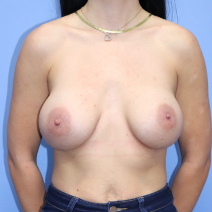 Breast Augmentation Before & After Patient #214