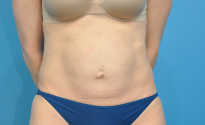Abdominoplasty/ Tummy Tuck Before & After Patient #159