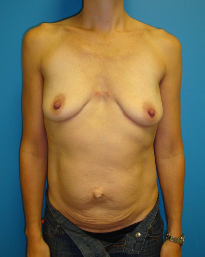 Abdominoplasty/ Tummy Tuck Before & After Patient #166