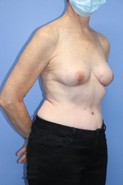 Autologous/DIEP Flap Reconstruction Before & After Patient #534