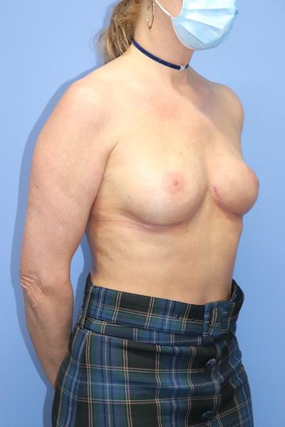 Autologous/DIEP Flap Reconstruction Before & After Patient #517