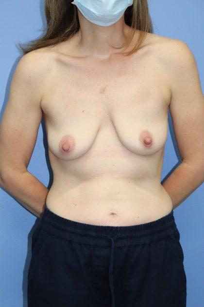 Autologous/DIEP Flap Reconstruction Before & After Patient #592